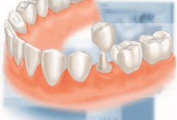 Restorations: Fillings, Onlays, Crowns, Veneers