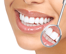 Teeth Cleaning and Polishing