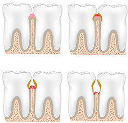 Treatment of Gum Disease